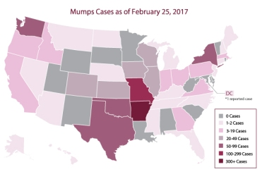 mumps-outbreak-map.jpg