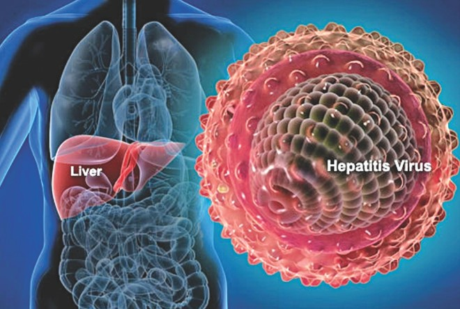 Hepatitis-A.jpg