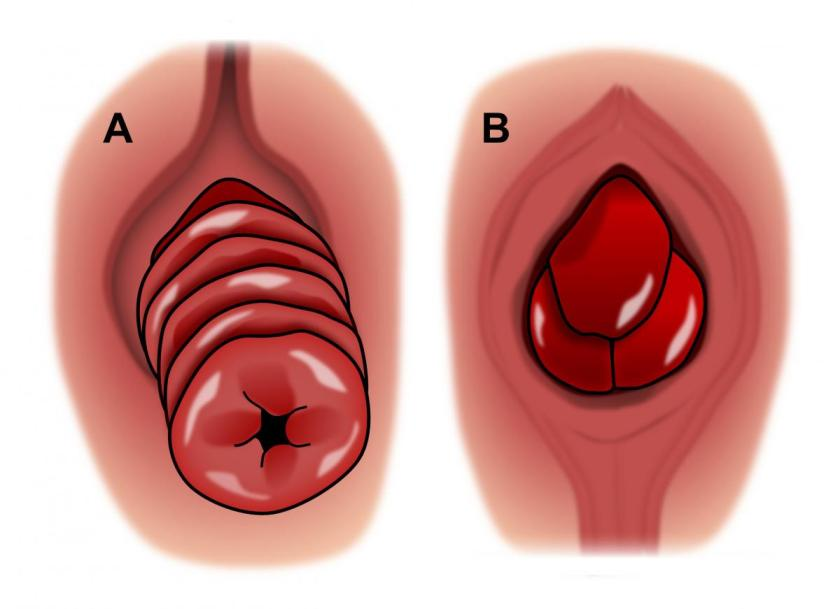 rectalprolapse_vs_hemorrhoid