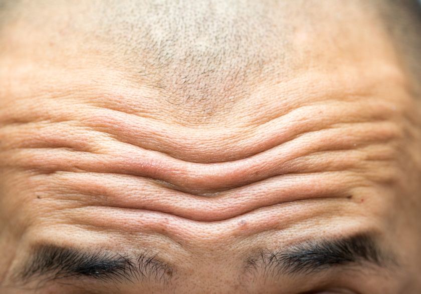 Deep Forehead Wrinkles May Suggest Heart Disease Risk – Dr