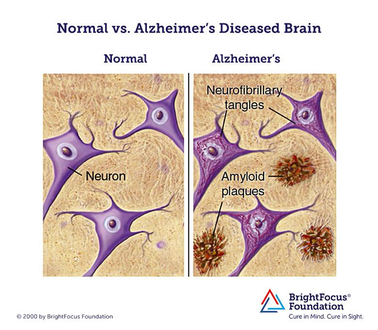 Normal_vs_Alzheimers_Brain.jpg