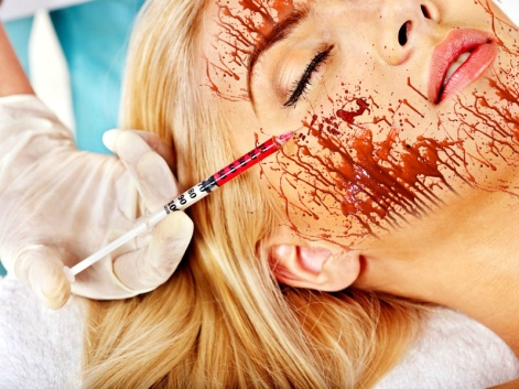 What Is A Vampire Facial And What Are The Benefits by Barbies beauty bits