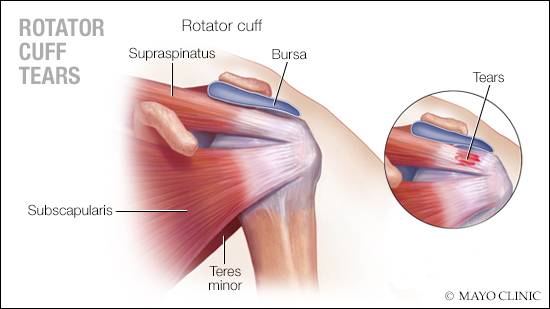 a-medical-illustration-of-rotator-cuff-tears-original