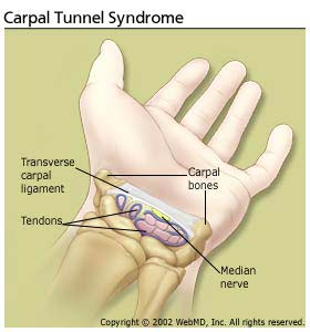 arthritis_carpel_tunnel_syndrome_carpal_tunnel_syndrome