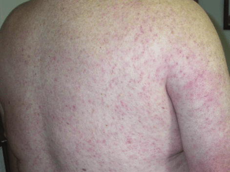Diffuse-maculopapular-rash-associated-with-West-Nile-virus-infection.png