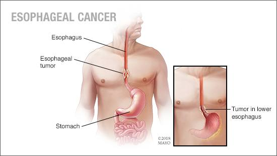 a-medical-illustration-of-esophageal-cancer-original.jpg